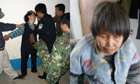 63-Year-Old Chinese Retired School Teacher Shrank 6 Inches