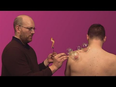 Extreme Cupping Therapy - YouTube